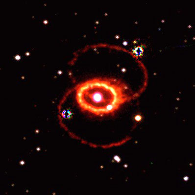 SN1987A
